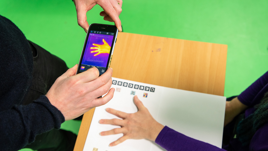 CAMERA Smartphone technology will use AI to help arthritis patients manage their flare-ups