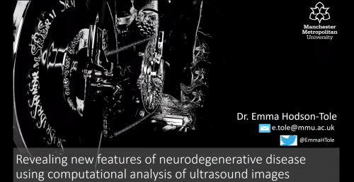 CAMERA Revealing new features of neurodegenerative disease using computational analysis of ultrasound images